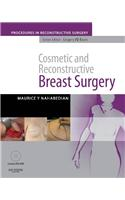 Cosmetic and Reconstructive Breast Surgery [With Dvdrom]